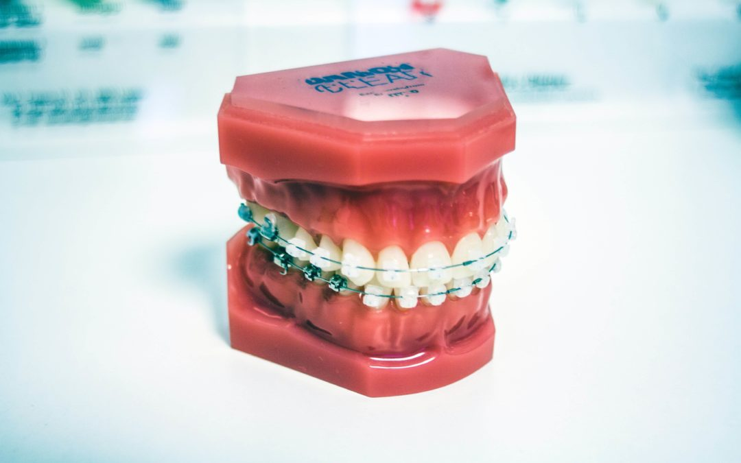 3 Things to Know After Getting Braces